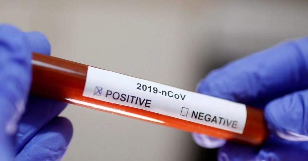 El distrito estuvo un mes y medios sin registrar nuevos casos, pero durante el fin de semana se confirmaron 13 infectados.