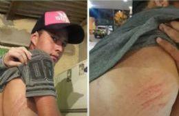 Uno de los jóvenes agredidos por la agente Yamila Palacios.